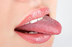What Your Tongue Says About Your Health Blog General & Preventive Dentistry Oral Health