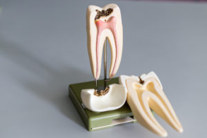 Are Root Canals as Scary as they Sound? Blog General & Preventive Dentistry