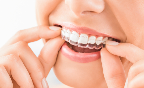 Patients Choose Limestone Dental for Orthodontics in Wilmington, DE