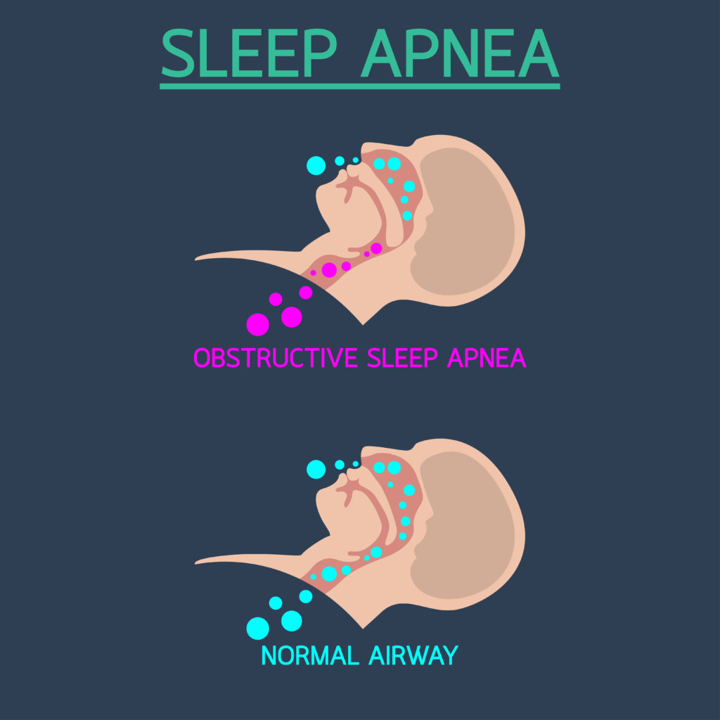 Seven Signs You May Be Dealing with Obstructive Sleep Apnea Blog
