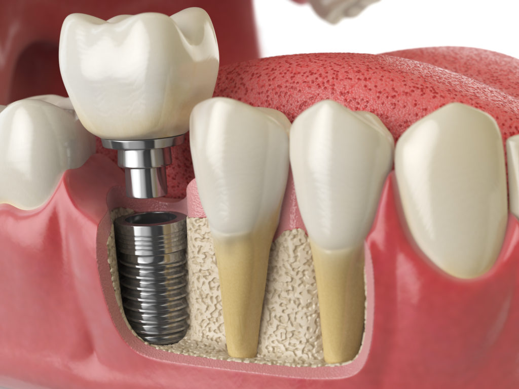 Get Your Dental Implants in Delaware Fast! Blog