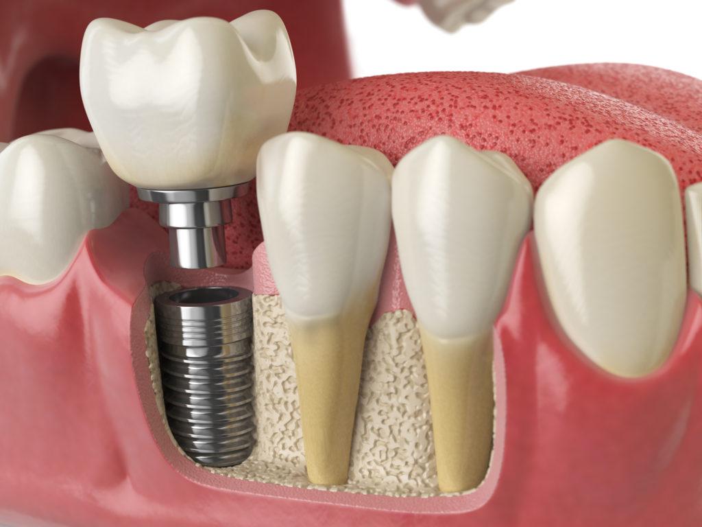 Get Your Dental Implants in Delaware Fast! Blog