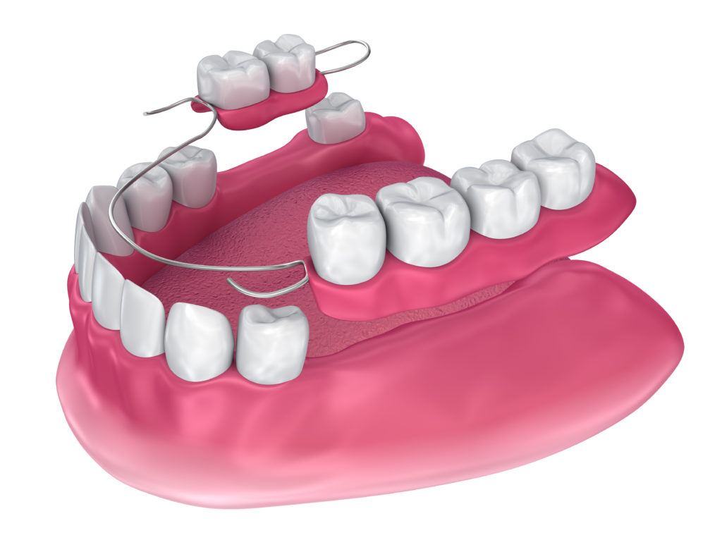 Find the Best Dentures in Delaware Blog